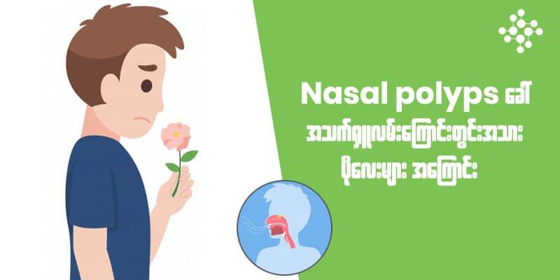Nasal Polyps ခေါ် အသက်ရှူလမ်းကြောင်းတွင်းအသားပိုလေးများအကြောင်း