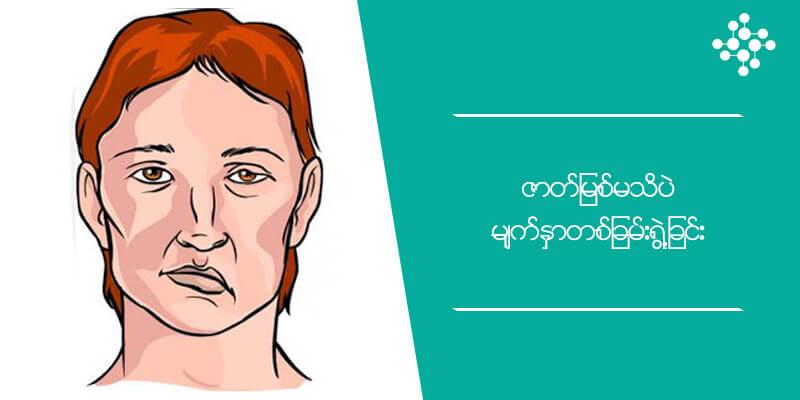 ဇာတ်မြစ်မသိပဲ မျက်နှာတစ်ခြမ်းရွဲ့ခြင်း